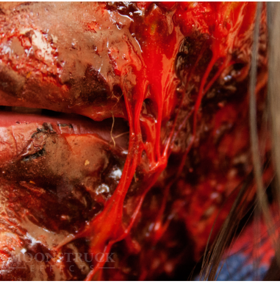 Wound - Gelatin Tubes