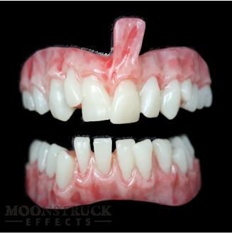 Lavra Teeth